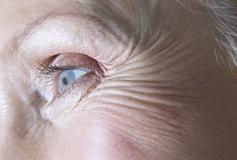 درمان چین و چروک زیر چشم با ماسک های طبیعی