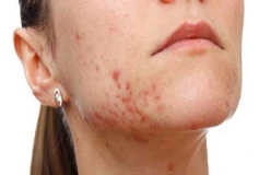 درمان های طبیعی اسکار پوست