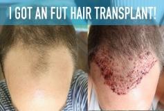 کاشت مو به چه روش هایی انجام می شود؟+ انواع روش کاشت مو