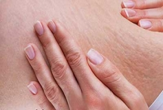 استرچ مارک یا ترک های پوستی و راههای پیشگیری و درمان آن