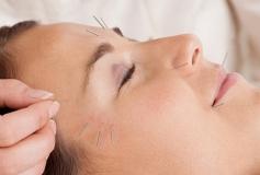 آیا طب سوزنی بر زیبایی پوست تاثیر دارد؟