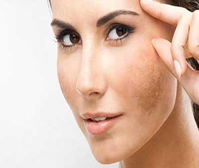 لکه صورت یا ملاسما را چطور درمان کنیم؟