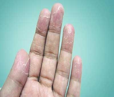 با پوست پوست شدن قسمت های مختلف بدن چکار کنیم؟