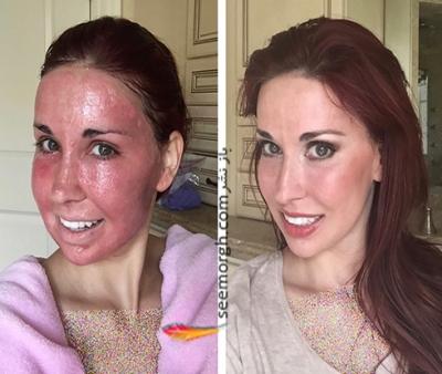جوانسازی پوست صورت و معرفی جدیدترین دستگاه های جوانسازی