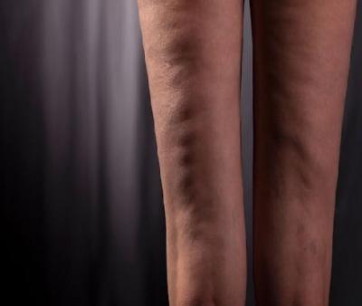 درمان سلولیت با آگاهی از این 15 راز